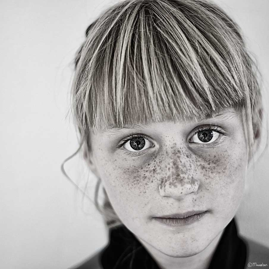 Freckles Unlimited