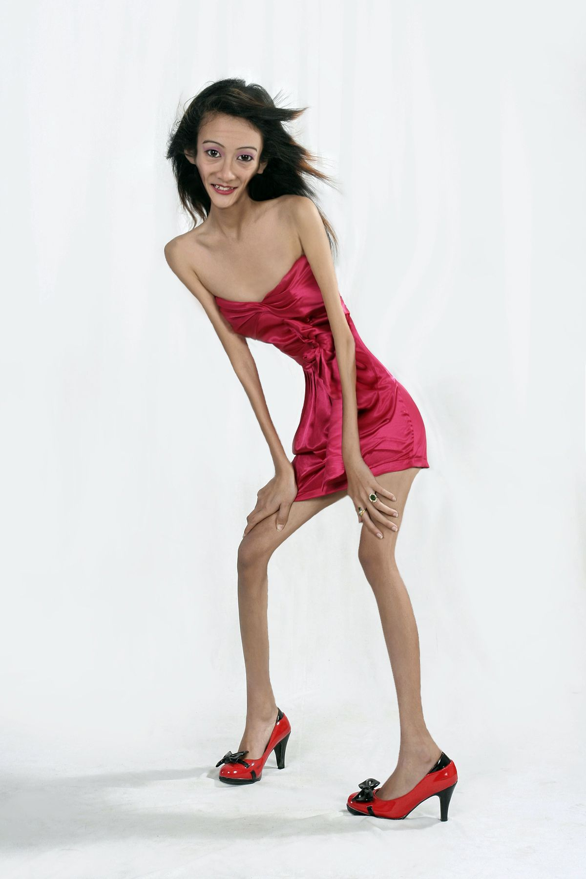 Anorexic japanese
