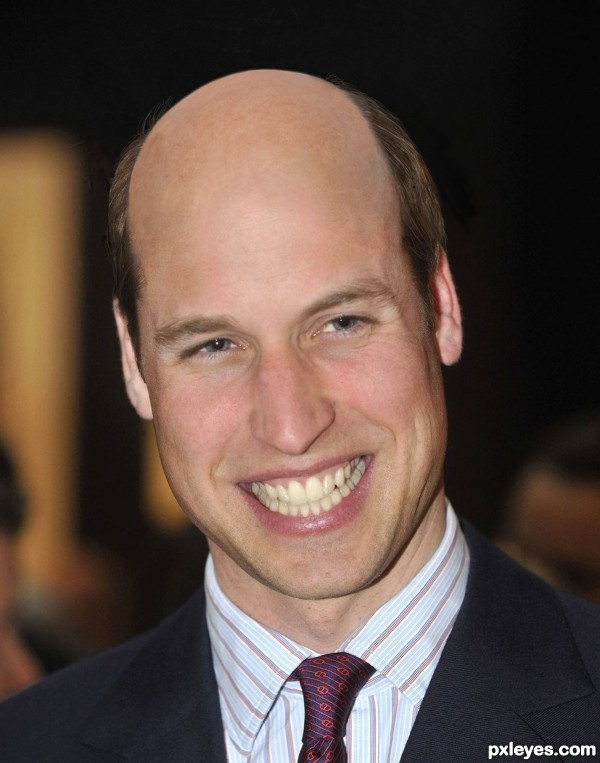 Hair Plugs, Wills!