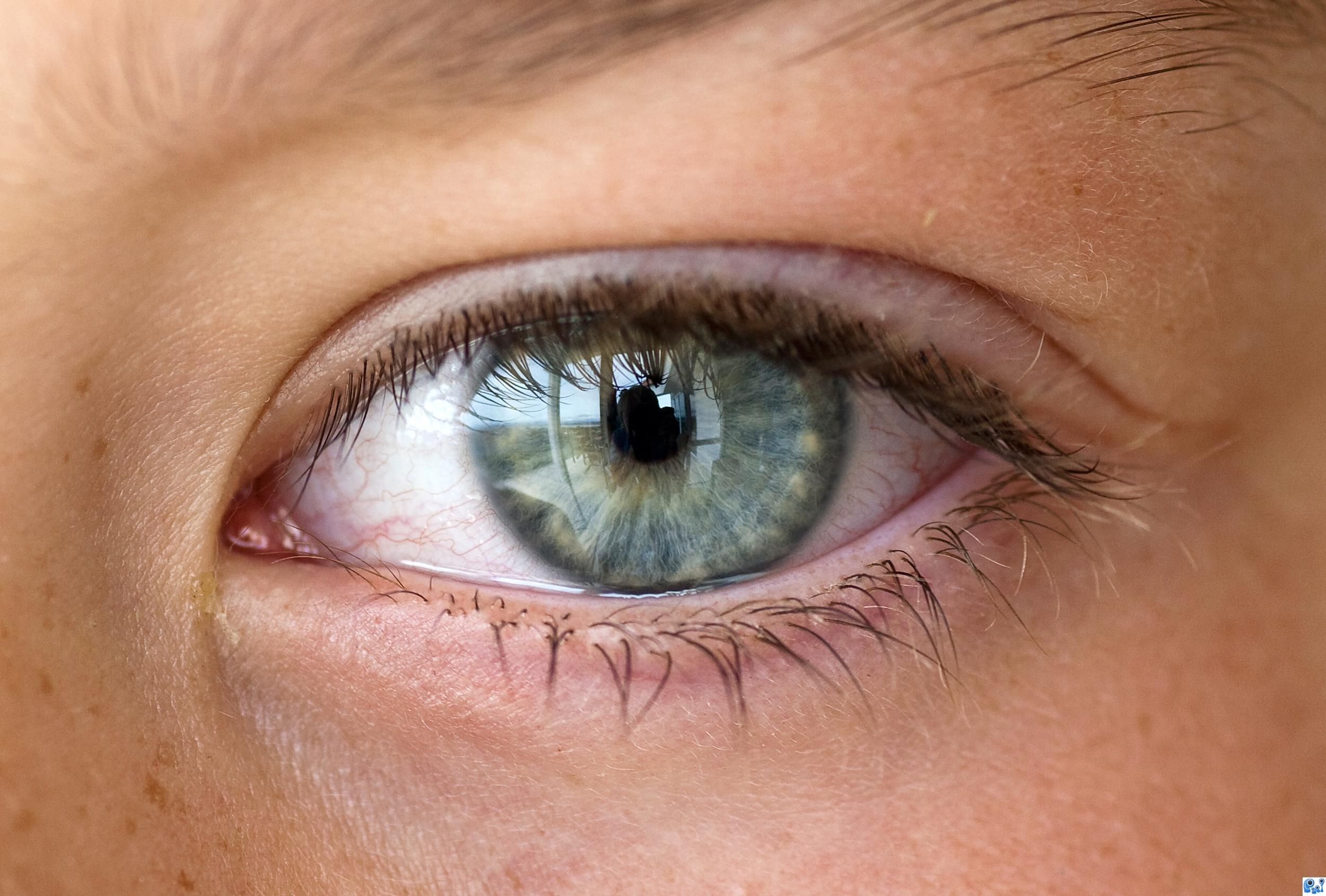Do Wrong Glasses Make Eyes Water