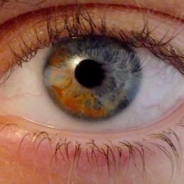 Heterochromiairidum