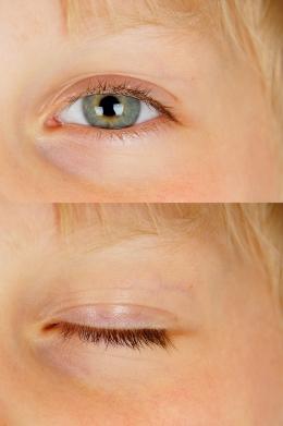 open eye & closed eye