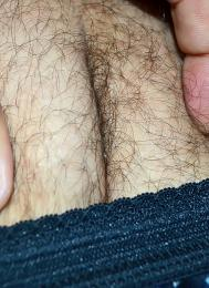 Hairybodypart