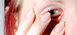 Nail VS. Eye